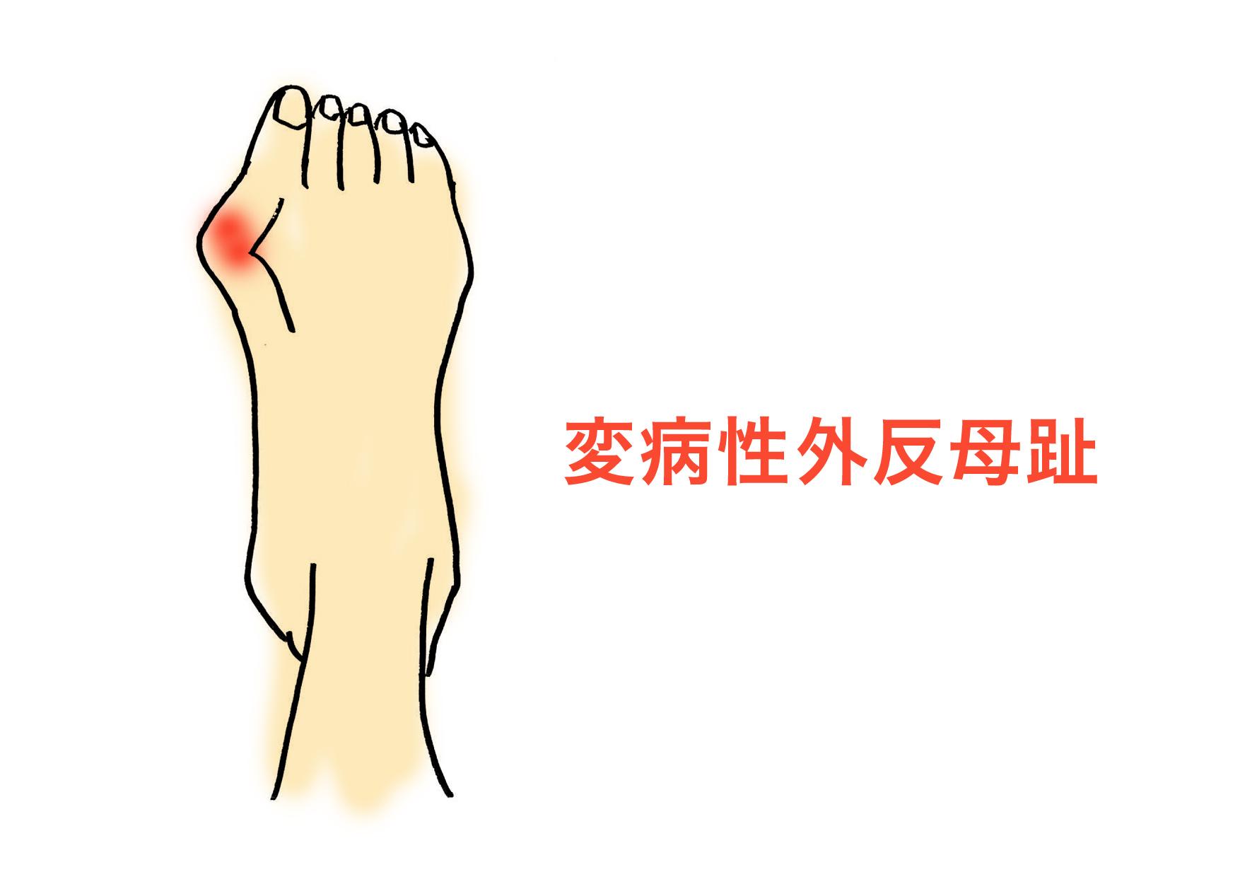 変病性外反母趾