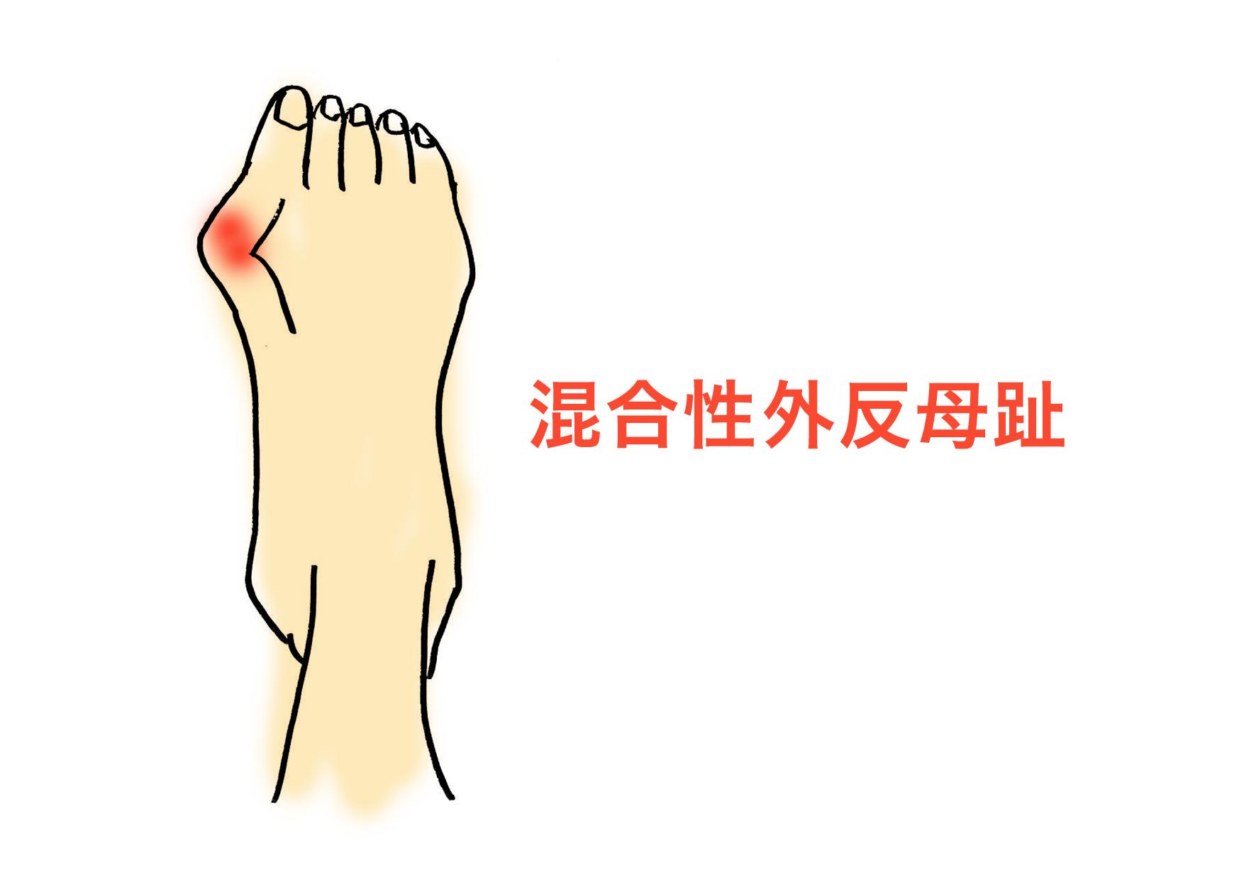 混合性外反母趾